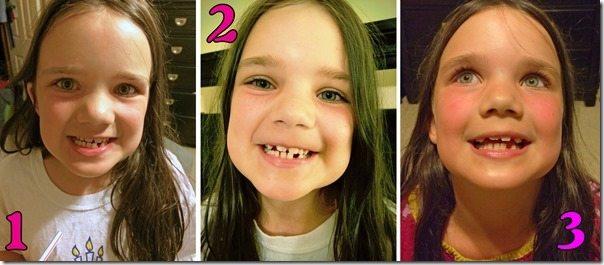 Three Teeth Lost in One Week